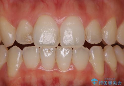 前歯の着色をPMTCできれいにの治療前
