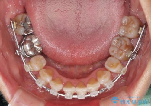 出っ歯を改善した後に真っ白な歯に 矯正歯科治療と審美歯科治療の治療中