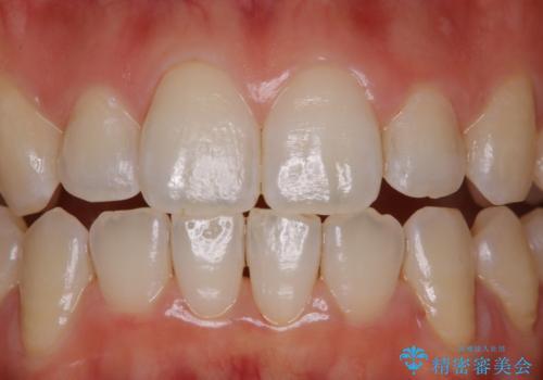 前歯の着色をPMTCできれいにの治療後