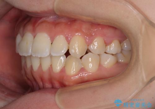 軽微な歯列不正をワイヤー矯正で整えるの治療後