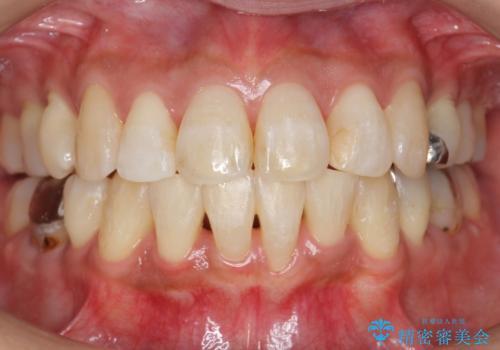 出っ歯 前歯のがたがた 口元を引っ込めたいの治療後
