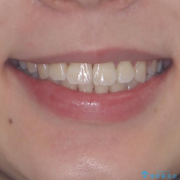 軽微な歯列不正をワイヤー矯正で整えるの治療後(顔貌)