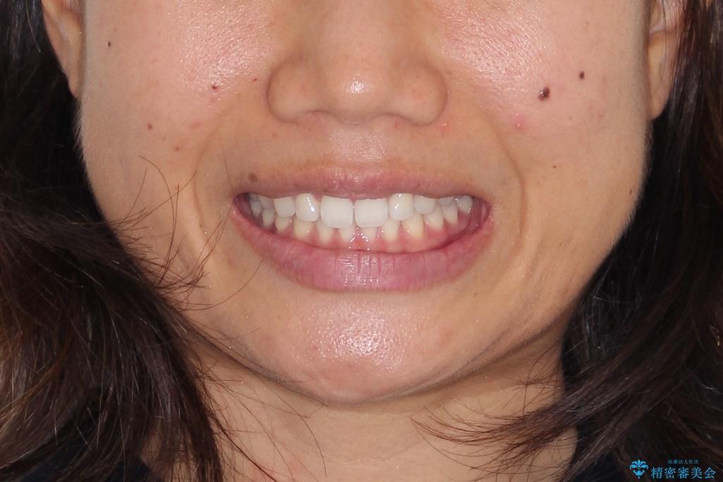 すきっ歯のインビザラインによる目立たない矯正の治療後(顔貌)
