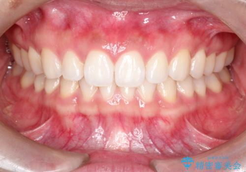 すきっ歯のインビザラインによる目立たない矯正の治療後