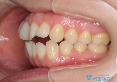 前歯の叢生とオープンバイト インビザラインでの矯正治療の治療前
