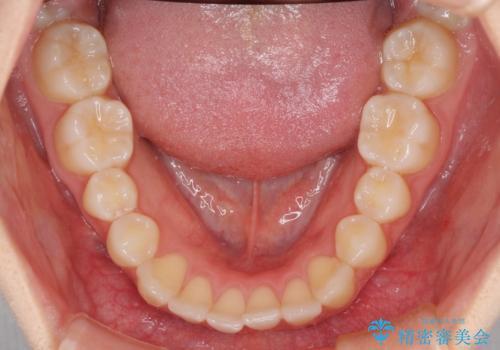 前歯のクロスバイト インビザラインによる矯正治療の治療前