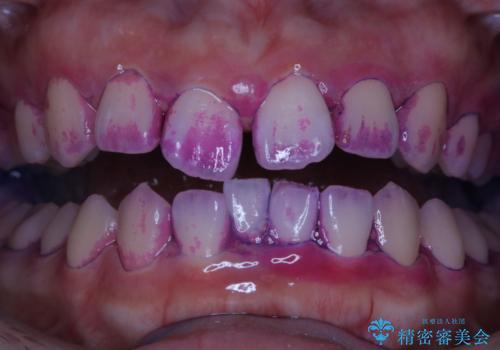 矯正治療前にPMTCで口元のケアの治療前