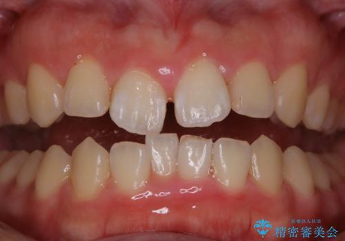 矯正治療前にPMTCで口元のケアの治療後