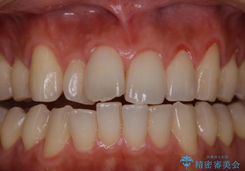 PMTCで清潔感ある口元にの治療前