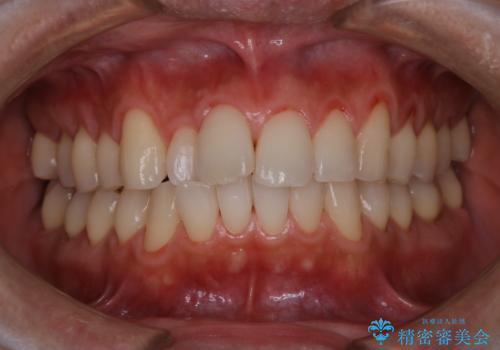 PMTCで清潔感ある口元にの治療後