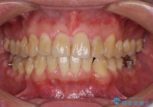 前歯のデコボコと下顎の八重歯 インビザラインによる矯正治療の治療中