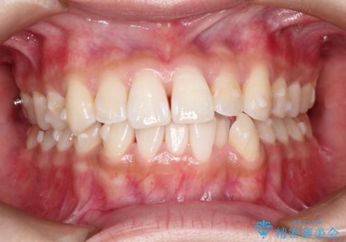 前歯のがたつきと反対咬合 インビザラインによる矯正治療の治療中
