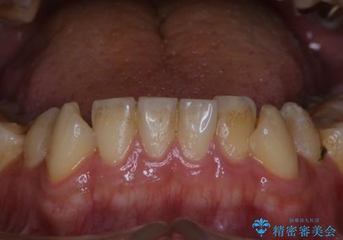 人生で初めて歯のクリーニング〔PMTC〕の治療前