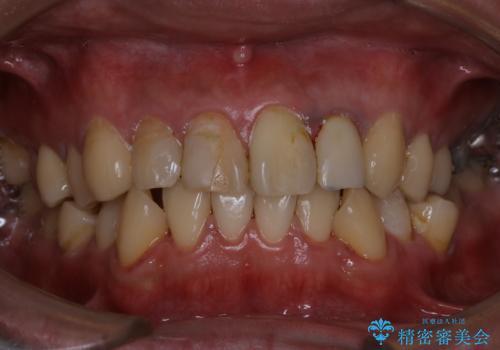 人生で初めて歯のクリーニング〔PMTC〕の治療後
