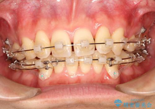 前歯のガタガタをきれいにしたい ワイヤーによる抜歯矯正で整った歯並びへの治療中