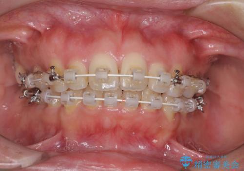 口元をスッキリと ワイヤー装置による抜歯矯正の治療中