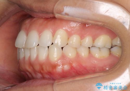 受け口傾向の前歯 すきっ歯の改善の治療前
