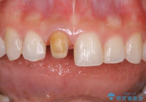 前歯1本だけ色が違う:他の歯となじむ被せ物で自然な仕上がりにの治療中