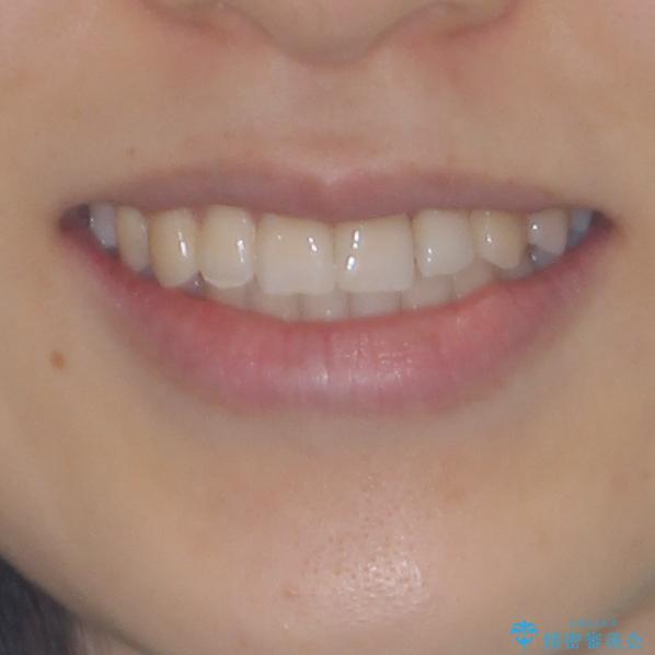 前歯のクロスバイト インビザラインによる矯正治療の治療後(顔貌)