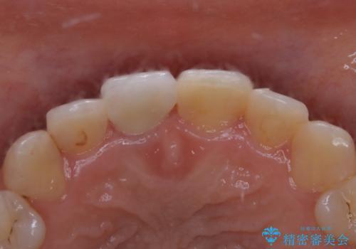 前歯1本だけ色が違う:他の歯となじむ被せ物で自然な仕上がりにの治療後