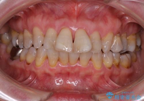 出っ歯を改善した後に真っ白な歯に 矯正歯科治療と審美歯科治療の症例 治療前