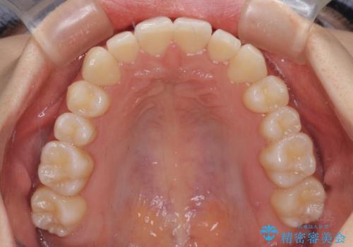 前歯のクロスバイト インビザラインによる矯正治療の治療後