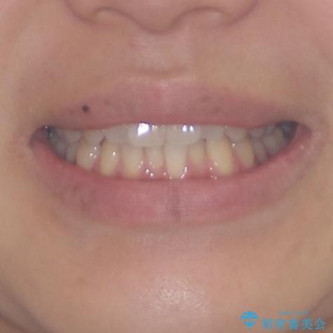 インプラントによる補綴治療とインビザライン矯正の治療前(顔貌)