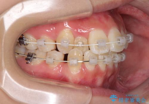 前歯の正中のズレを改善 目立たないワイヤー装置での抜歯矯正の治療中