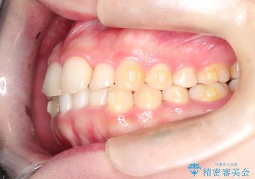 インビザラインでの前歯のガタガタの矯正の治療中