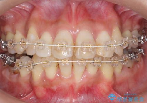 出っ歯 前歯のがたがた 口元を引っ込めたいの治療中
