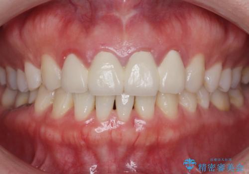美容外科による不自然なかぶせもので、前歯がコンプレックスに。自然なセラミックにやりかえ 30代女性の治療前