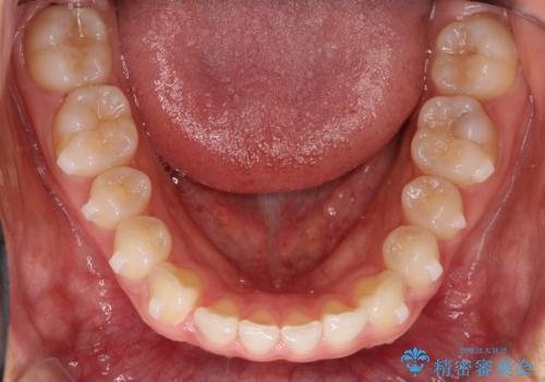 すきっ歯のインビザラインによる目立たない矯正の治療中