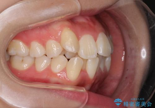 前歯の正中のズレを改善 目立たないワイヤー装置での抜歯矯正の治療前