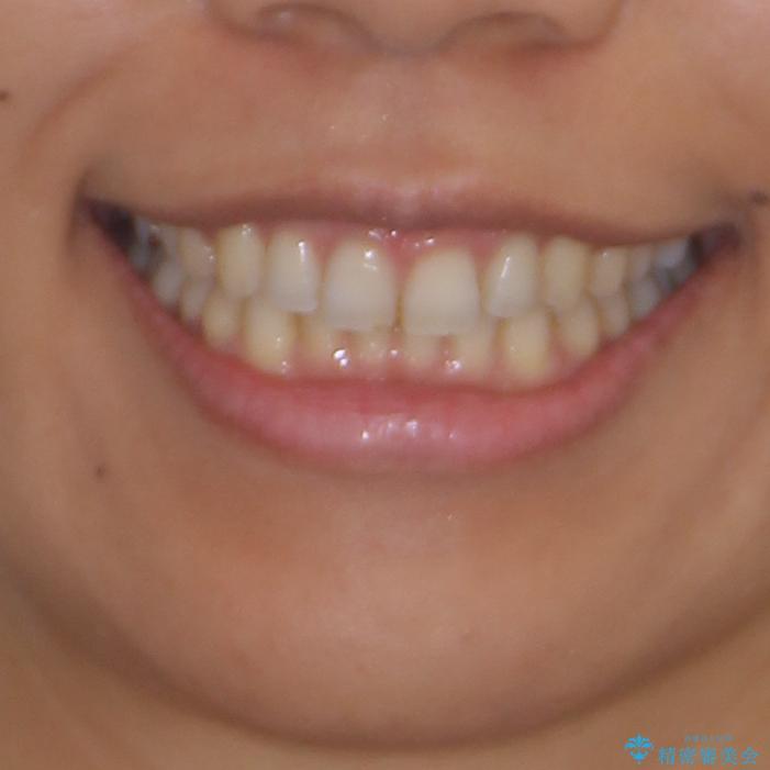 受け口傾向の前歯 すきっ歯の改善の治療後(顔貌)