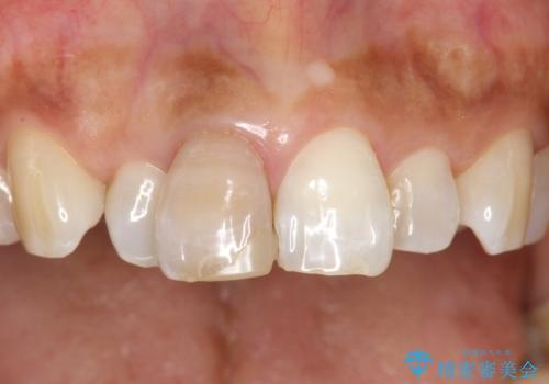前歯の色が気になる、オールセラミッククラウンによる治療の治療前