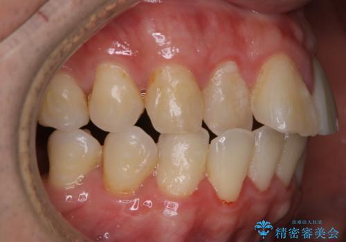 インビザラインで歯科矯正治療を行っている方のPMTCの治療前