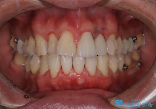 インビザラインで歯科矯正治療を行っている方のPMTCの治療後