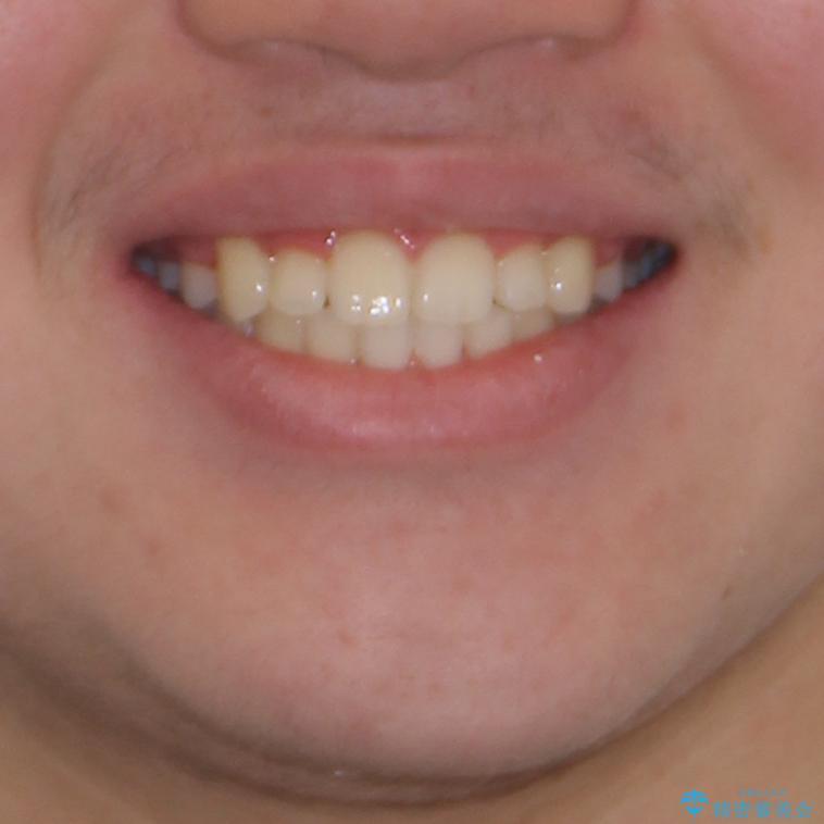 中学生のワイヤー矯正 クロスバイトを短期間で改善の治療後(顔貌)