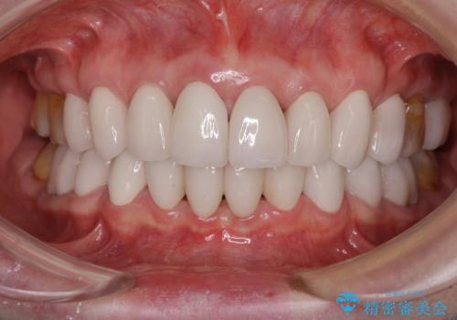 出っ歯を改善した後に真っ白な歯に 矯正歯科治療と審美歯科治療の症例 治療後