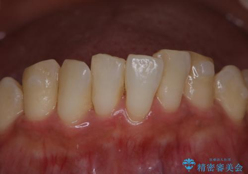 invisalign治療中にPMTCできれいな口元にの治療前