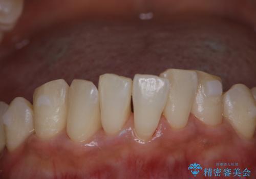 invisalign治療中にPMTCできれいな口元にの治療後