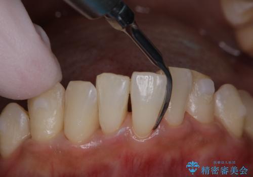 invisalign治療中にPMTCできれいな口元にの治療中
