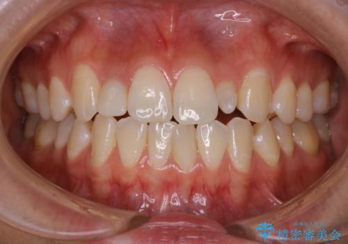 前歯のセラミックを作る前にホワイトニングの治療前