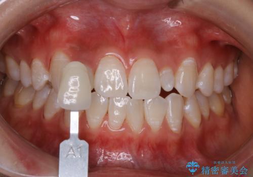 前歯のセラミックを作る前にホワイトニングの治療後