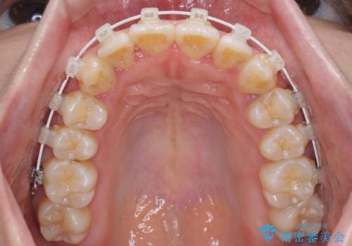 軽微な歯列不正をワイヤー矯正で整えるの治療中