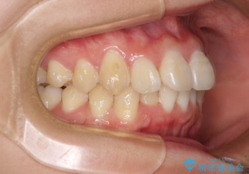 上下前歯の叢生をインビザラインできれいにの治療中