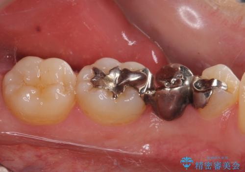 外れてしまった銀歯の詰め物 オールセラミックブリッジにて審美補綴の治療前