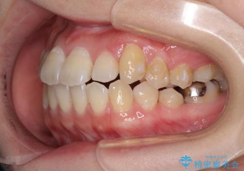 口元の突出感を改善 インビザラインによる非抜歯矯正の治療中