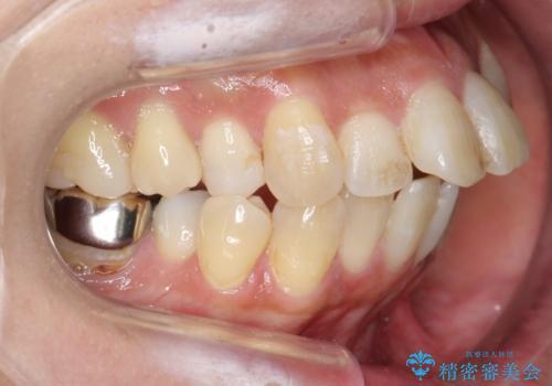 出っ歯 前歯のがたがた 口元を引っ込めたいの治療前