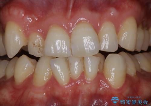 1日で着色を除去し綺麗な歯にの治療前